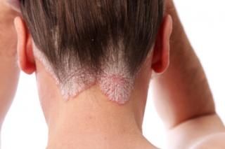 bőrbetegségek pikkelysömör népi gyógymódok a pikkelysömör gyógyszereinek klinikai vizsglatai