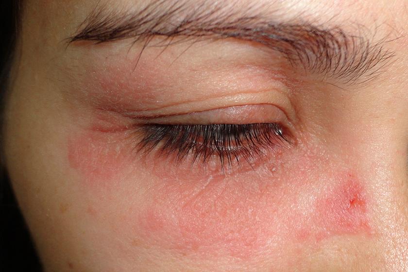 vörös foltok az arcon viszkető arc)