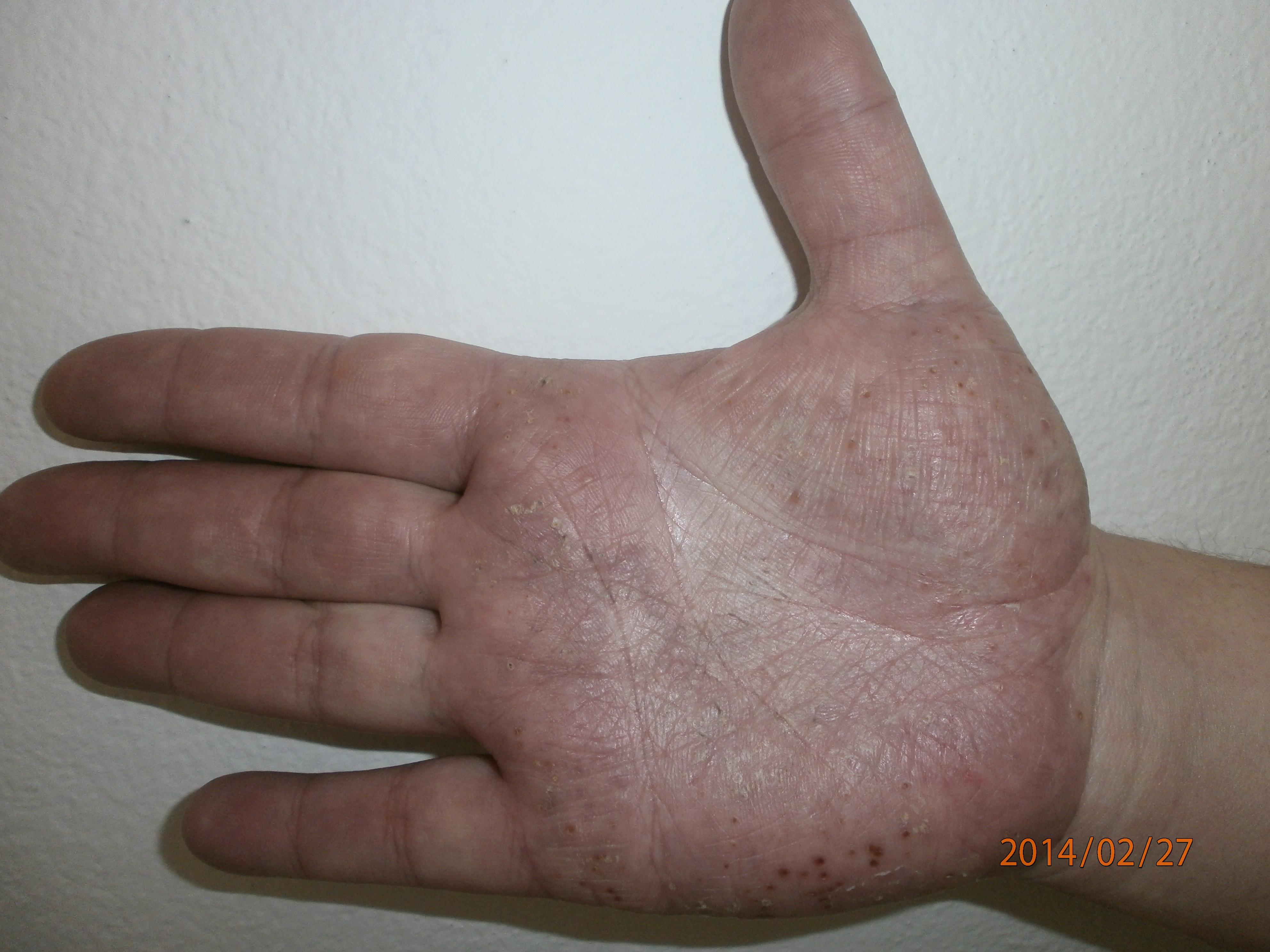 tenyér kezelése pikkelysömörre mi okozza a pikkelysmr s hogyan kell kezelni
