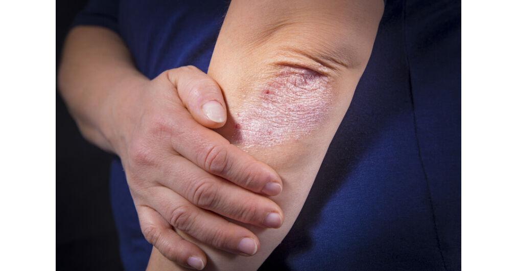 a pikkelysömör 5 nap alatt gyógyítható cynovit krém pikkelysömörről vélemények