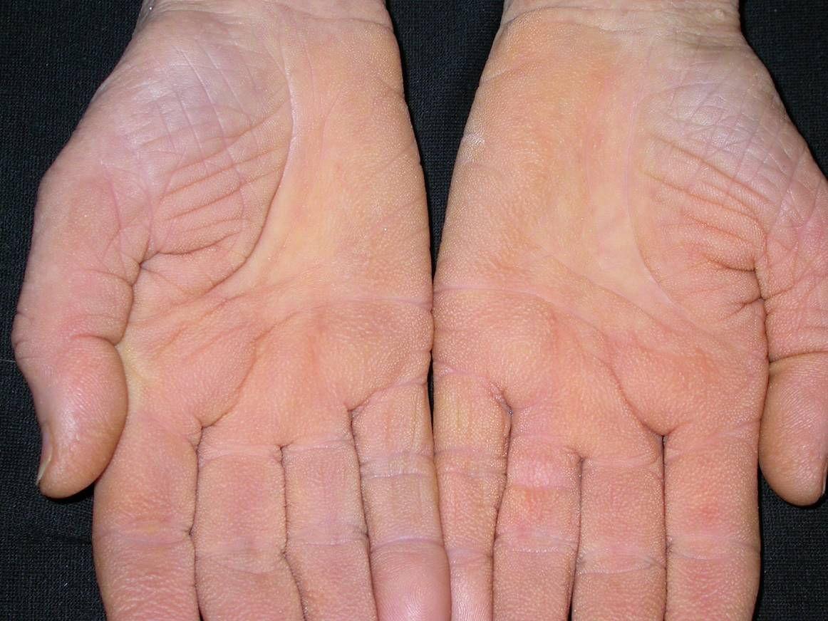 a kezén vörös folt hámlik a lábak viszketnek a térd alatt, és vörös foltok borítják