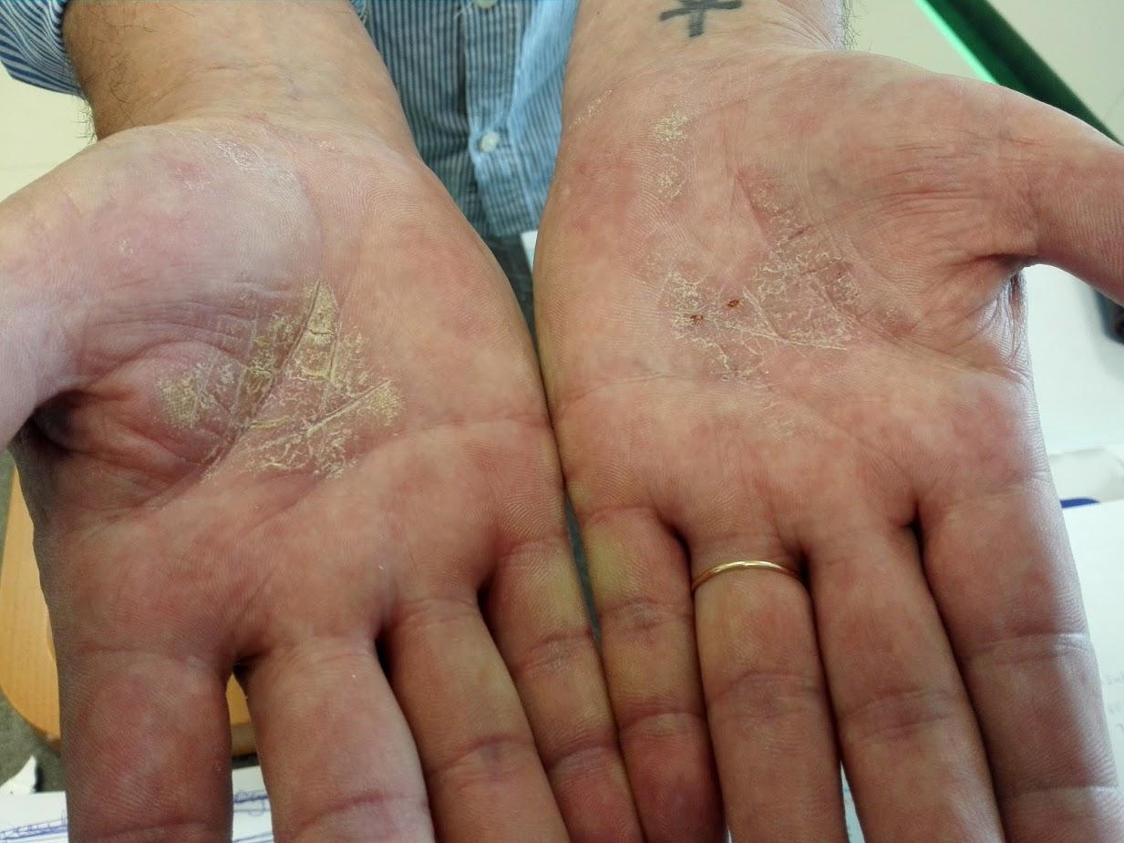 apró piros foltok az ujjakon viszketnek