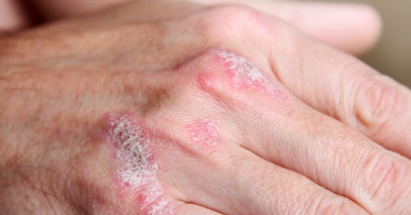 seborrheic dermatitis pikkelysmr kezels gyógyítani pikkelysömör fej