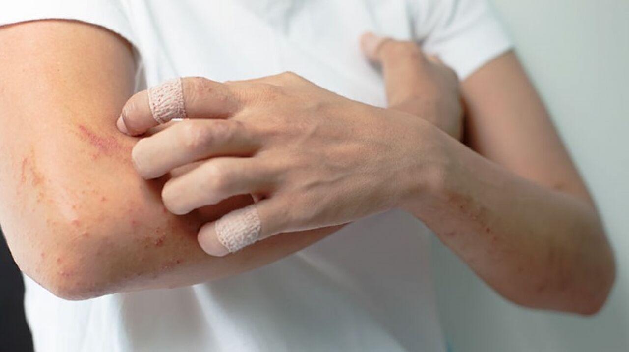vörös foltok jelentek meg és viszketés kezelése