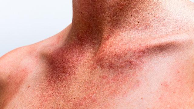 hogyan kezeljük a fej és a fül pikkelysömörét pikkelysömör és seborrhea kezelése