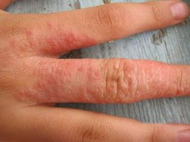 Vörös és viszket? Lehet téli bőrszárazság, de ekcéma is!