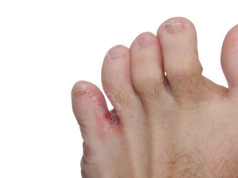 népi gyógymódok a pikkelysömör megszabadulásához miért álmodozna vörös foltokban lévő lábakról