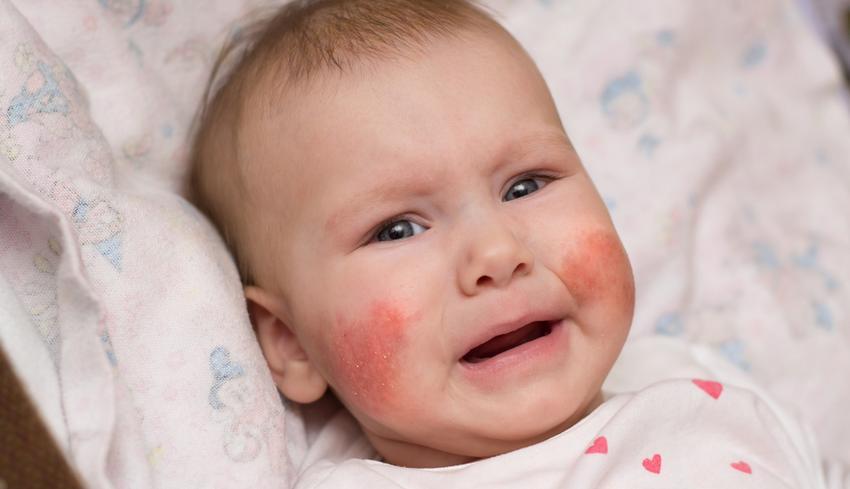 vörös pikkelyes foltok az arccsontokon)