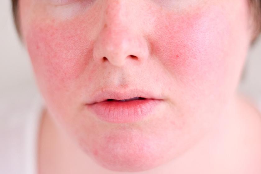 az arc vörös foltokkal borul a hidegben