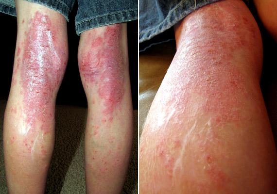 psoratinex sampon vörös száraz foltok a bőrön mint kezelni