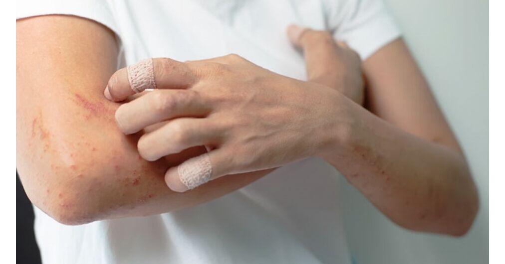 STELARA 45 mg oldatos injekció - Gyógyszerkereső - EgészségKalauz