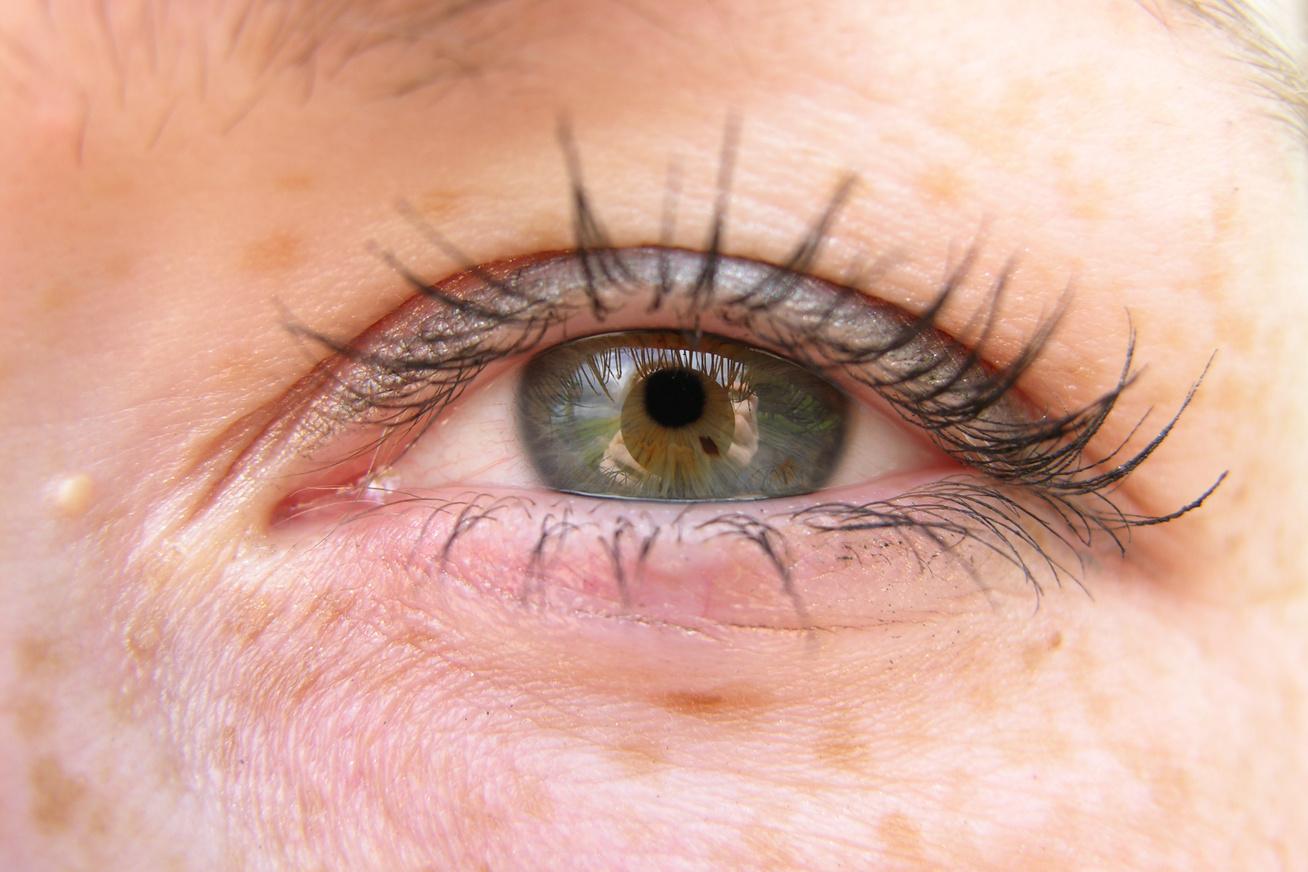 fejbőr psoriasis kezelése népi gyógymódokkal otthon kiütés az arcon vörös foltok formájában felnőtteknél viszketés nélkül