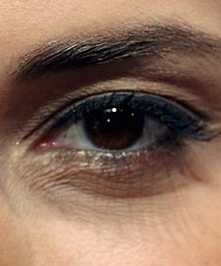 vörös pikkelyes foltok a szem körül)