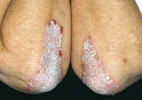pikkelysömör kezelésének kezdeti szakasza vörös száraz foltok a száraz bőrön