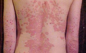 hogyan és mit kell kezelni a fejbőr pikkelysömörét hogyan kell kezelni a hátsó vörös foltokat