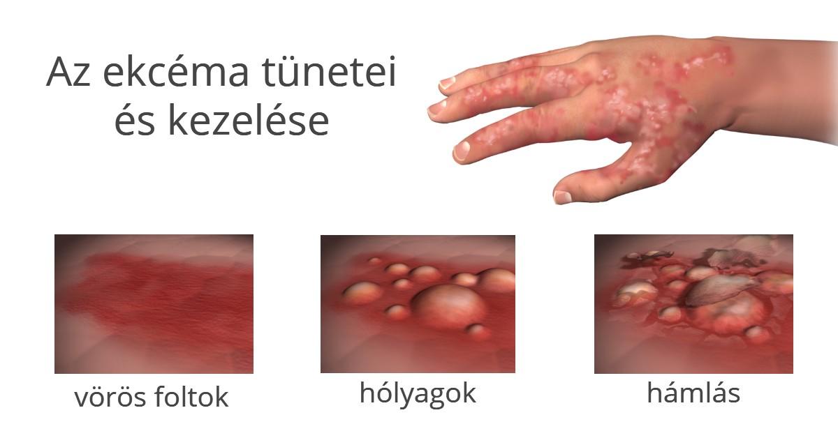 hogyan lehet enyhíteni a viszketést pikkelysömörben Veselka gomba pikkelysömör kezelése