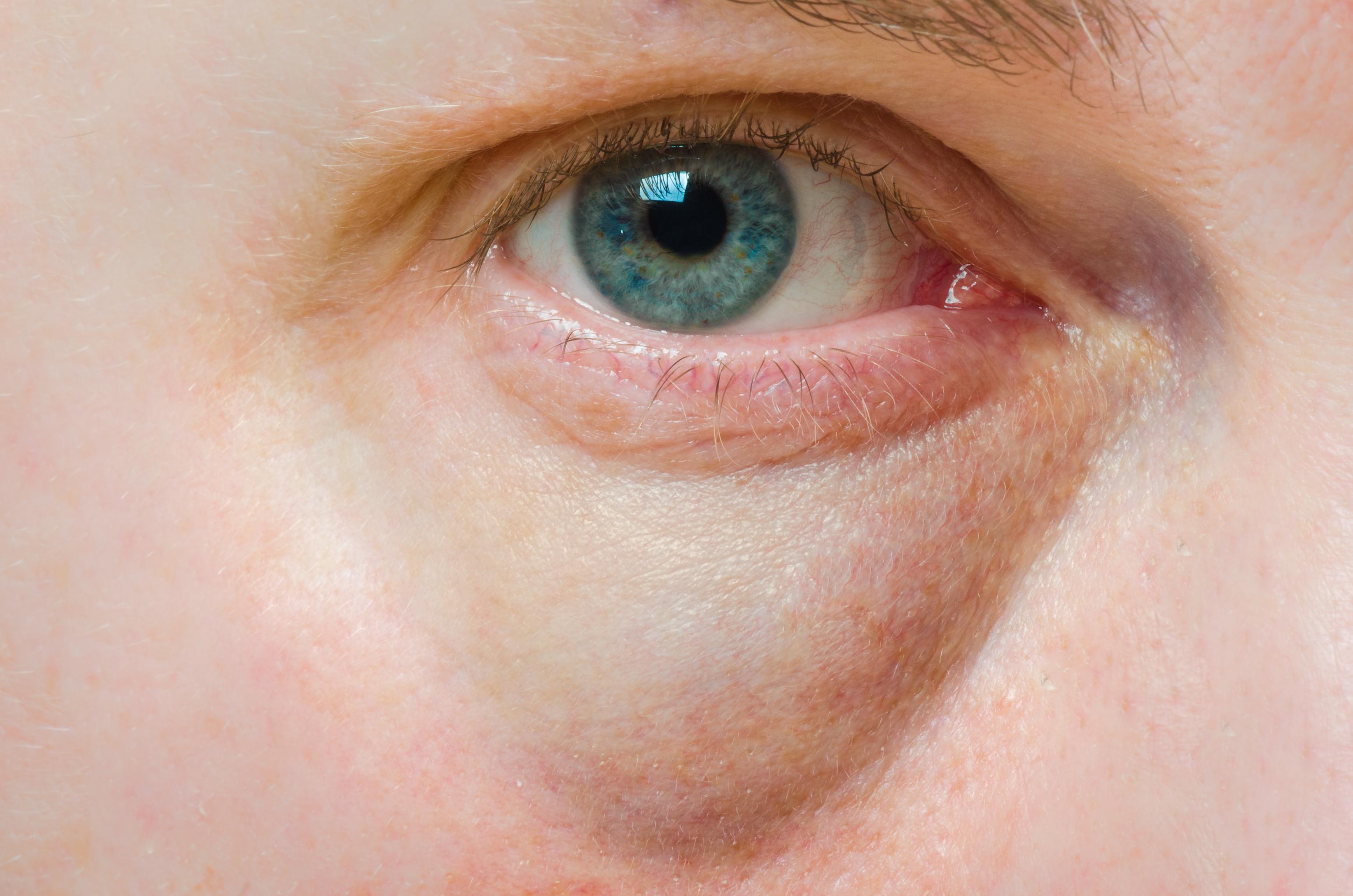 sinaphlan kenőcs pikkelysömörhöz miért jelennek meg a bőrön az arc vörös foltjai