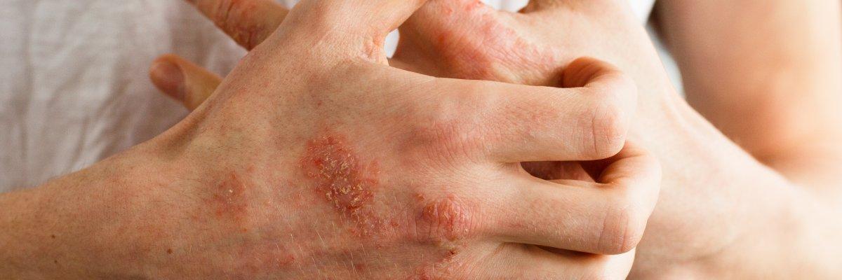 hogyan kell kezelni a test pikkelysömörét hatékony kezelések a pikkelysömör felülvizsgálatához