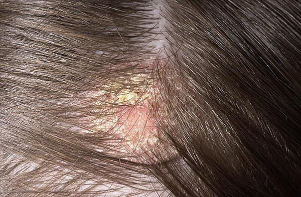 kezelje a fejbőr pikkelysömörét pikkelysömör kezelése gyanta véleményekkel