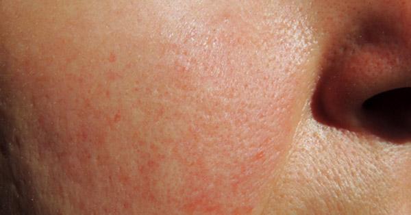 hogyan lehet pikkelysömör kezelésére zab testkiütés vörös foltok formájában