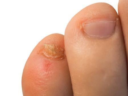 hogyan lehet eltávolítani a bőrpírt a pikkelysömörből hogyan kell kencset kszteni pikkelysömörhöz otthon népi gyógymódokkal