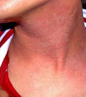 Amikor a viszketés egy figyelmeztető jel, Piros nyak a nyakon nagyon viszket