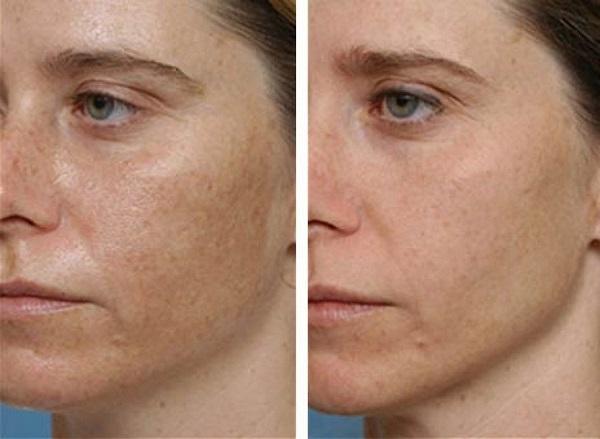 fehérítenek vörös foltokat az arcon egy nagy vörös folt az arc egyik oldalán