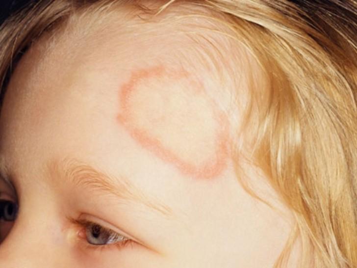 Hogyan lehet felismerni a zuzmót a fején? - Tumor