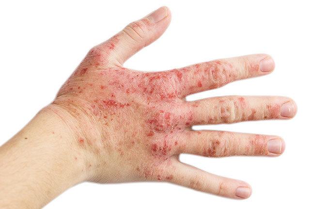a kezén vörös folt viszket le