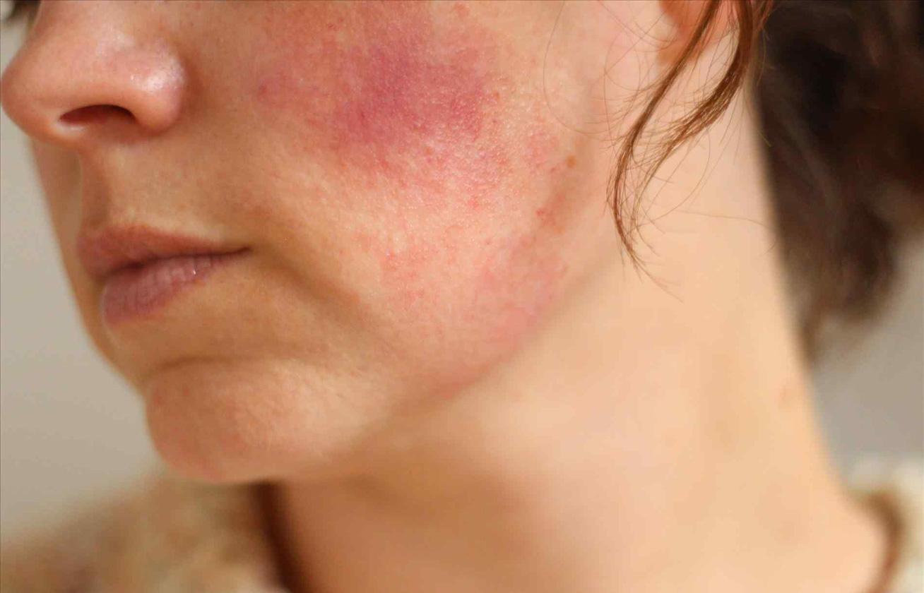 arcpakolás otthon a vörös foltok ellen