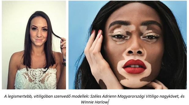 pikkelysömör és vitiligo kezelése