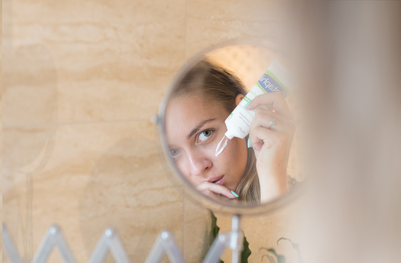 Félreértett viszketegség: hogyan kezelhető a pikkelysömör?   Képmás