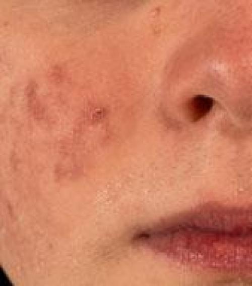 vörös foltok az arcon, mint a repedt hajszálerek pikkelysömör feje, mint a korpásodás eltávolítására