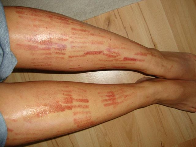 piros folt a lábán pontokkal