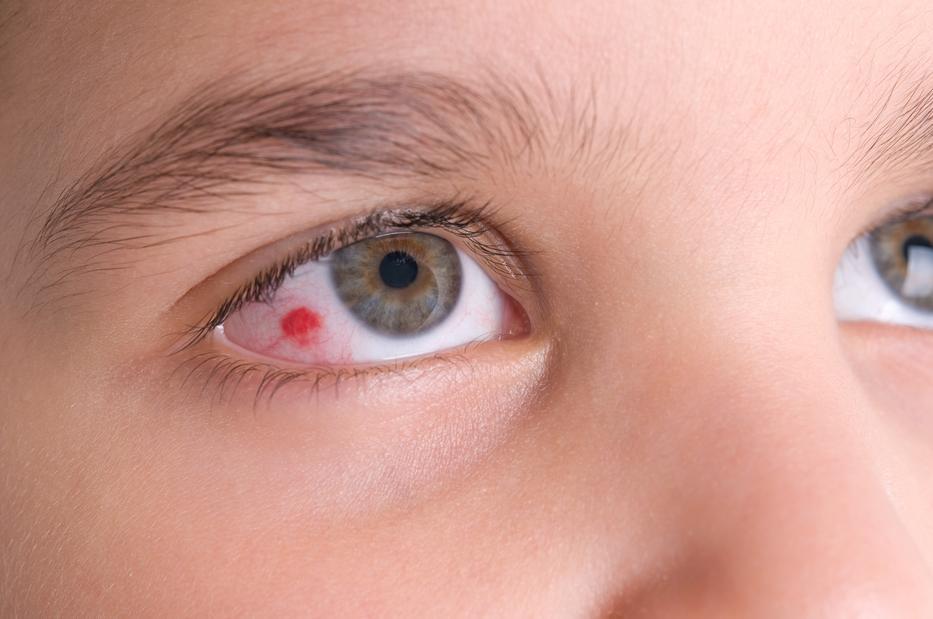 vörös pikkelyes folt a szem sarkában pikkelysömör kezelése sterlitamak