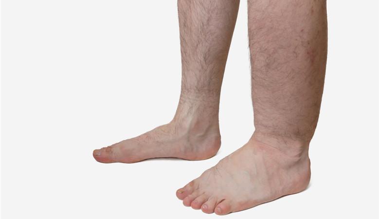 a lábak megduzzadnak és piros foltok jelennek meg