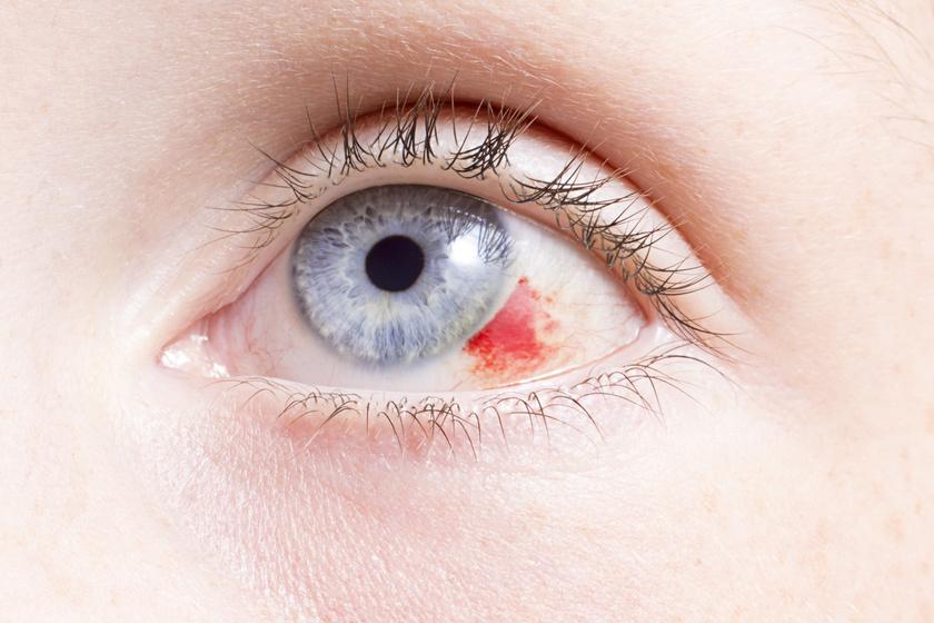 vörös folt a szemhéjon hogyan kell kezelni