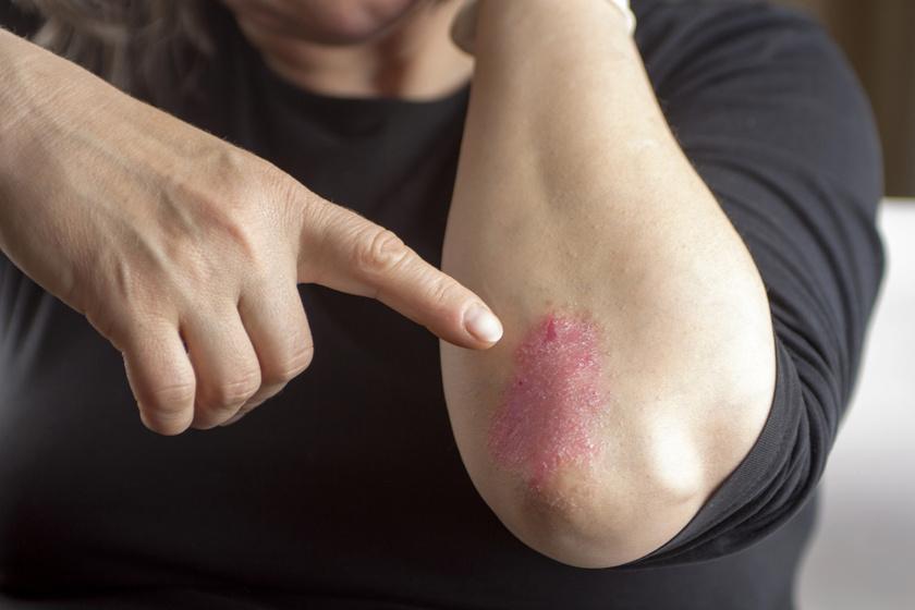 vörös pikkelyes foltok a kezeken az ujjak között pikkelysmr kezels professzora