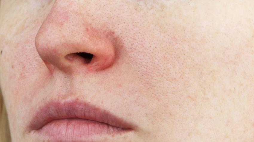 vörös pelyhes foltok az orr szárnyain a bőrön lévő foltok vörösre száradnak, mint kezelni