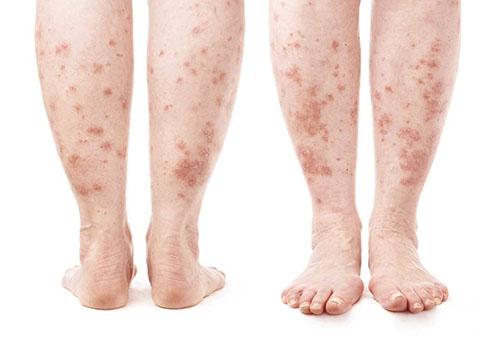 a lábakat vörös foltok borítják és duzzadtak vörös foltok jelentek meg a testen nagyon viszketve