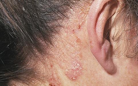 pikkelysömör kezelése immunológus véleményekkel folt a lábán vörös durva folt