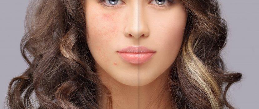 Viszkető arcbőr és kiütések | Bepanthen
