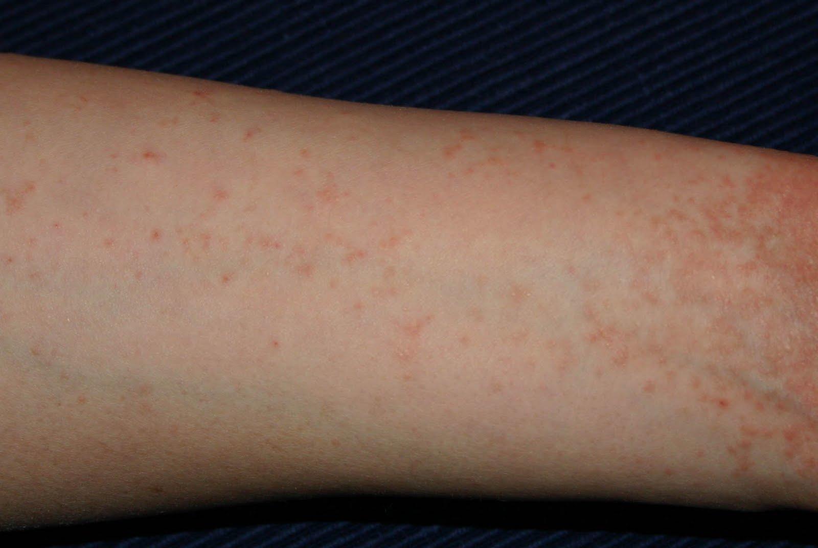 a lábakon apró piros foltok viszketnek pikkelysömör kezelésének diagnózisa