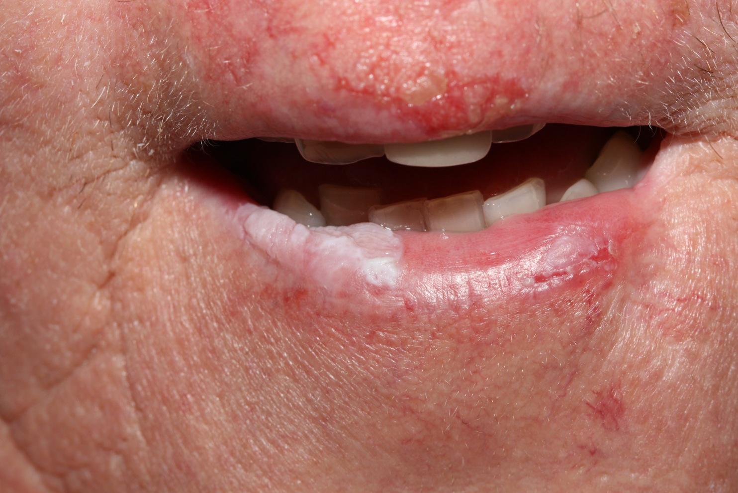 a száj közelében vörös folt pelyhesedik vörös foltok a hasán és a fülén