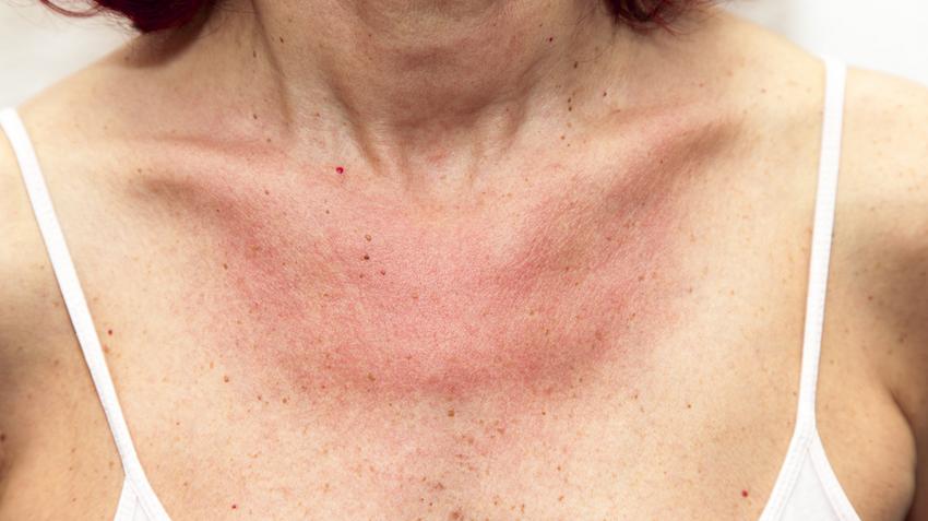 viszkető bőr a nyakon és vörös foltok