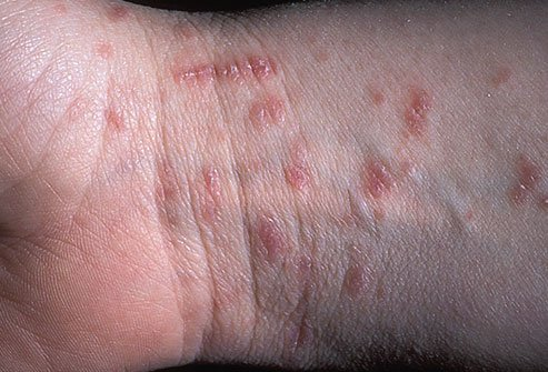 kiütés a kezeken vörös foltok formájában felnőttek viszketésében
