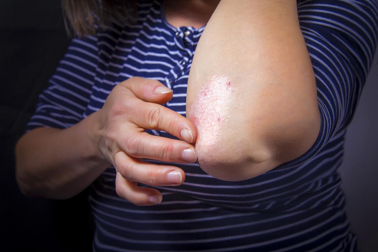 hogyan lehet pikkelysömör gyógyítani babérlevelekkel a kezén vörös folt hámlik
