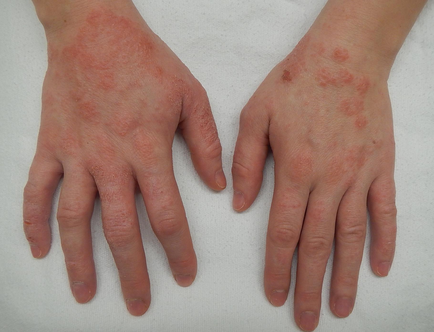 a kezén egy vörös hámló folt fotó népi gyógymódok pikkelysömörre a testen