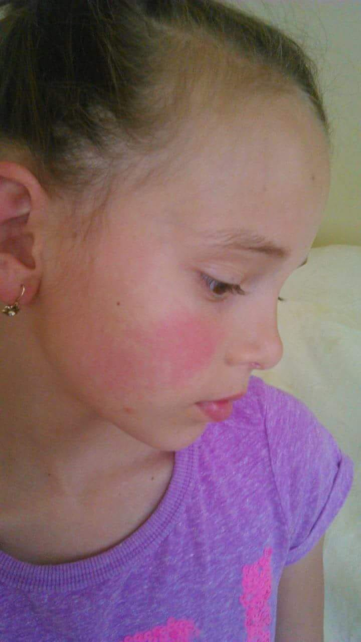 Piros, hámló foltok az arcon - Bőrbetegségek