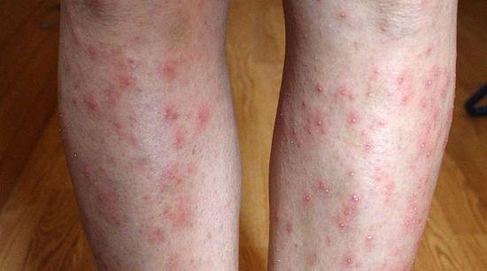 a lábakon vörös foltok fájnak, amikor megnyomják